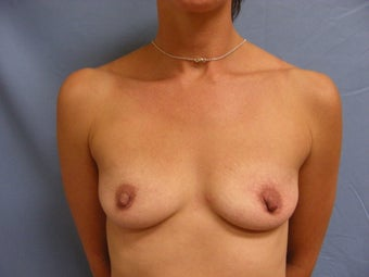 36 year old with small deflated breasts before 1016089