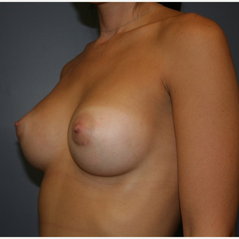 18-24 year old woman treated with Sientra Breast Implants after 3043676