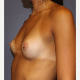 18-24 year old woman treated with Sientra Breast Implants before 3043676
