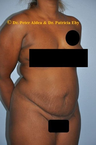 37 year old woman treated with Full Tummy Tuck and Lifting of the Mons and Upper Thighs before 2680117