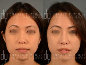 Before and After Asian Rhinoplasty with DCF (diced cartilage fascia)