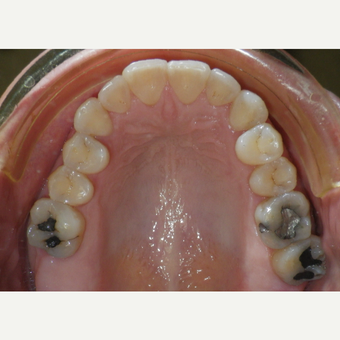 35-44 year old woman treated with Invisalign after 3657197