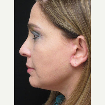 45-54 year old woman treated with Facelift after 3276732