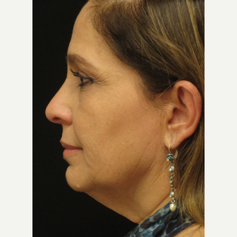 45-54 year old woman treated with Facelift before 3276732