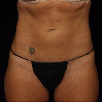 35-44 year old woman treated with Smart Lipo after 3542257