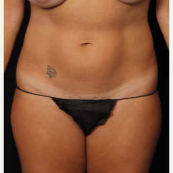 35-44 year old woman treated with Smart Lipo before 3542257