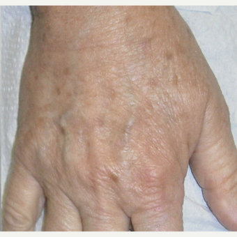 65-74 year old woman treated with IPL after 3161907