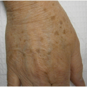 65-74 year old woman treated with IPL before 3161907