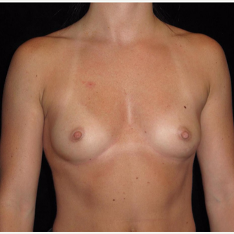 27 year old woman treated with Breast Augmentation before 3802746