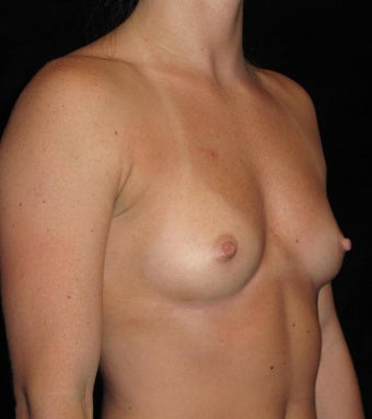 27 year old woman treated with Breast Augmentation 3802746