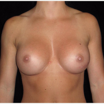 27 year old woman treated with Breast Augmentation after 3802746