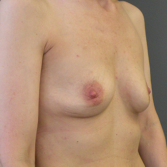 35-44 year old woman treated with Breast Implants before 3446393