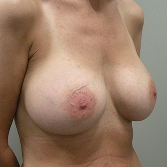 35-44 year old woman treated with Breast Implants after 3446393