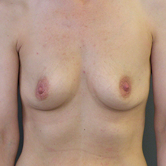 35-44 year old woman treated with Breast Implants 3446393