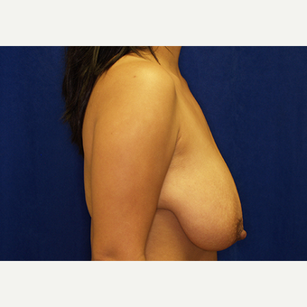 25-34 year old woman treated with Breast Lift with Implants before 3027989