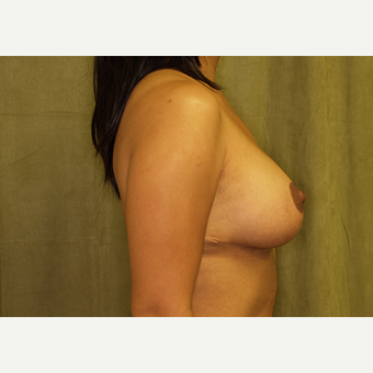 25-34 year old woman treated with Breast Lift with Implants after 3027989