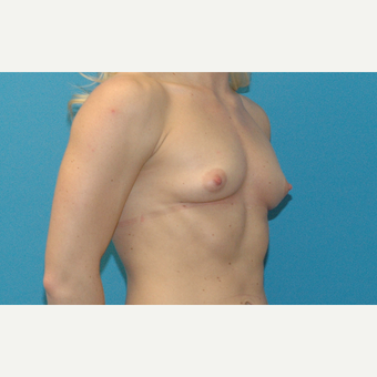 24 year old woman treated with Breast Implants before 3186277