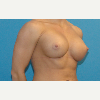 24 year old woman treated with Breast Implants after 3186277