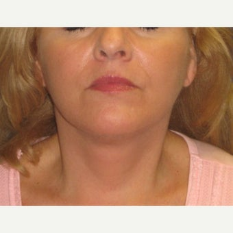 55-64 year old woman treated with Fat Transfer and a Face and Neck Lift after 1651526