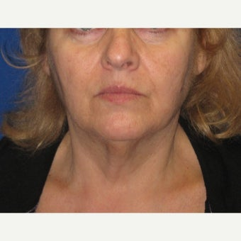 55-64 year old woman treated with Fat Transfer and a Face and Neck Lift before 1651526