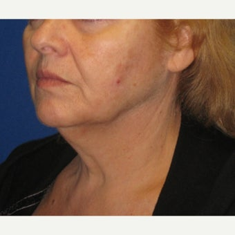 55-64 year old woman treated with Fat Transfer and a Face and Neck Lift 1651526