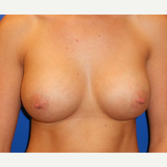 25-34 year old woman treated with Breast Implants after 3669650