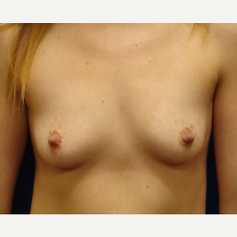 25-34 year old woman treated with Breast Implants before 3669650