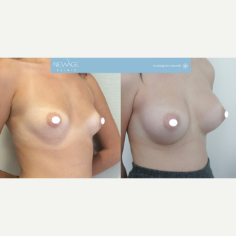 25-34 year old woman treated with Breast Augmentation before 3107636