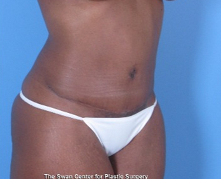 35-44 year old woman treated with Tummy Tuck after 1939288