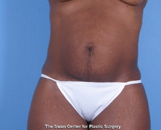 35-44 year old woman treated with Tummy Tuck 1939288