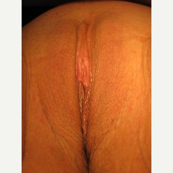 20 year old woman treated with Labiaplasty