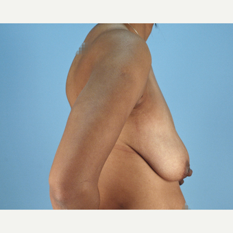 25-34 year old woman treated with Breast Lift before 3837759