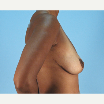 25-34 year old woman treated with Breast Lift after 3837759