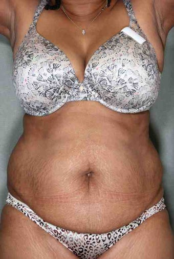 50 Year Female Liposuction Upper/Lower Abs before 1046606
