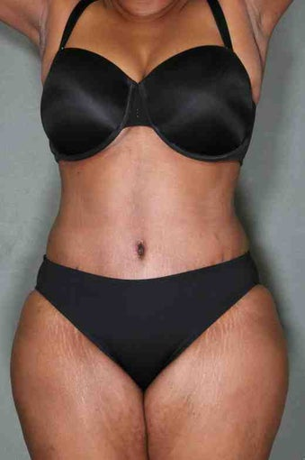 50 Year Female Liposuction Upper/Lower Abs after 1046606