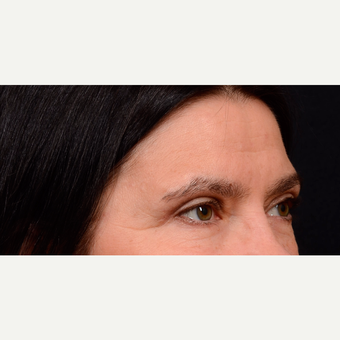 55-64 year old woman treated with Brow Lift after 3776195