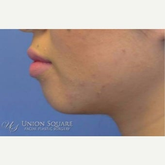 Chin enhancement using Restylane filler before 2168625