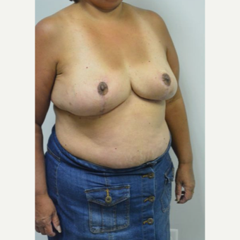 55-64 year old woman treated with Breast Reduction and liposuction of the axilla after 3383015