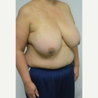 55-64 year old woman treated with Breast Reduction and liposuction of the axilla before 3383015