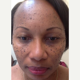 45-54 year old woman treated with Mole Removal before 3459311