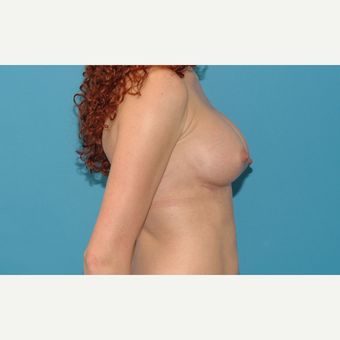 25 year old woman treated with Breast Implants after 3200758