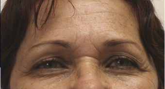 60 year old female status post in Office Setting Bilateral Brow Lift. before 925603