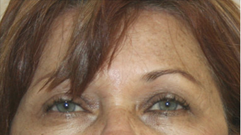 60 year old female status post in Office Setting Bilateral Brow Lift. after 925603