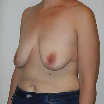 35-44 year old woman treated with Breast Lift with Implants before 3203167