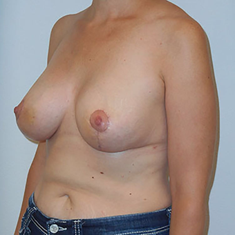 35-44 year old woman treated with Breast Lift with Implants after 3203167