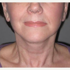 55-64 year old woman treated with Neck Lift after 1869909