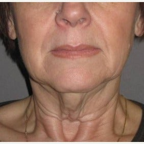 55-64 year old woman treated with Neck Lift before 1869909