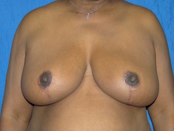 Breast Reduction 38DDD after 1021348