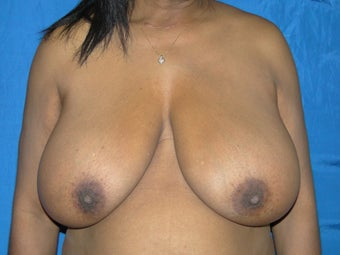 Breast Reduction 38DDD before 1021348