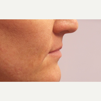 45-54 year old woman treated with Lip Augmentation before 3675143